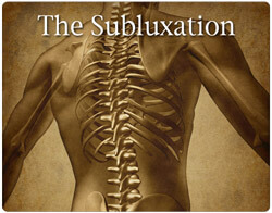 subluxation-quiz